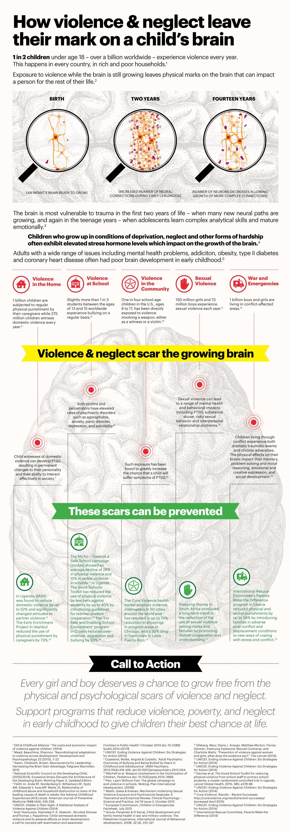 Brain Infographic